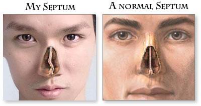 Oblique Septum